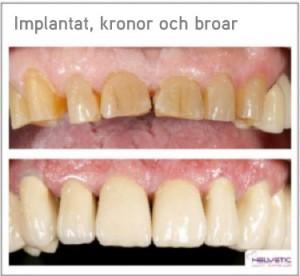 Implantat kronor och broar