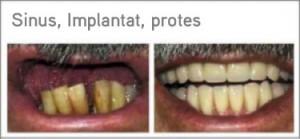 Sinus implantat protes