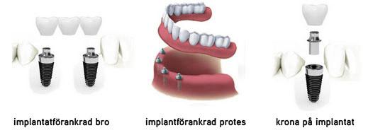 krona pa implantat